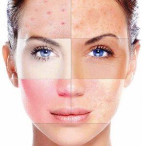 Зміни шкіри після вугрової хвороби