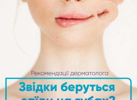 Лікування та основні причини заїд в куточках рота у дітей та дорослих