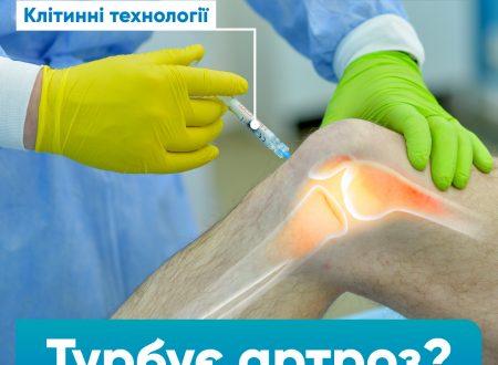 Сучасне лікування артрозу